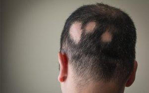 علل تاسی سر و درمان