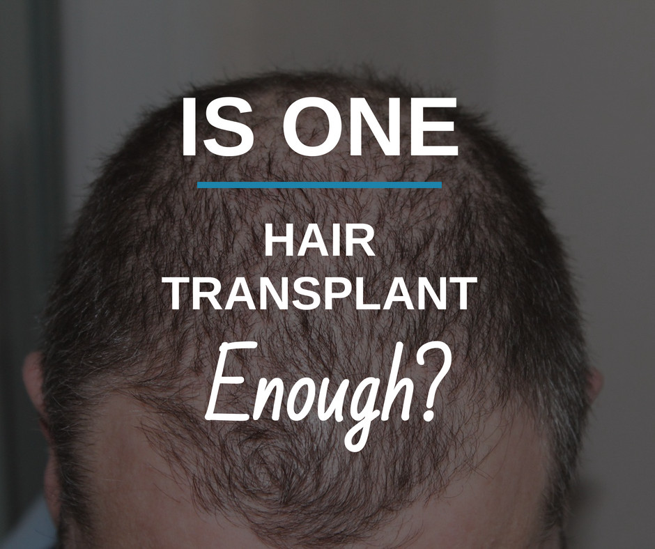 ?is one-Hair Transplant Enough