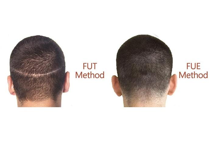 انواع روش های كاشت مو