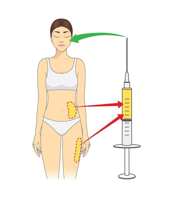 تزریق ژل یا چربی
