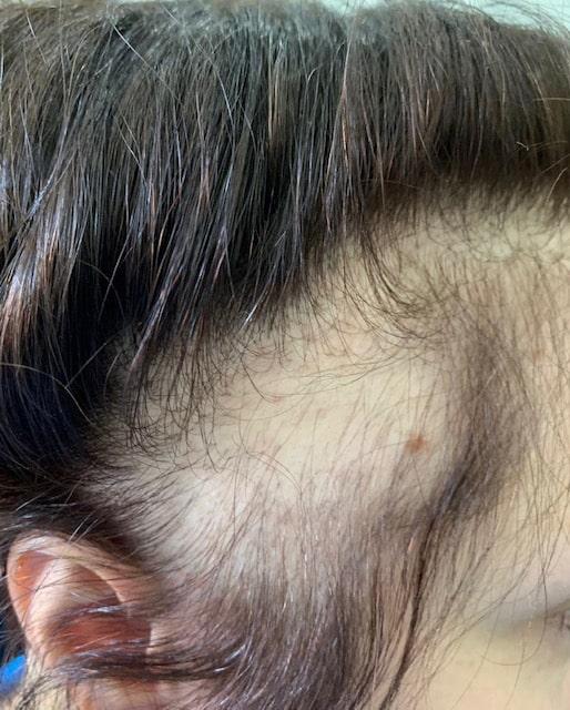 کاشت مو در محل اسکار