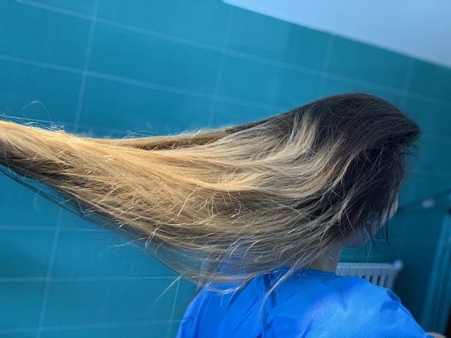 کاشت مو چند مرحله می باشد؟