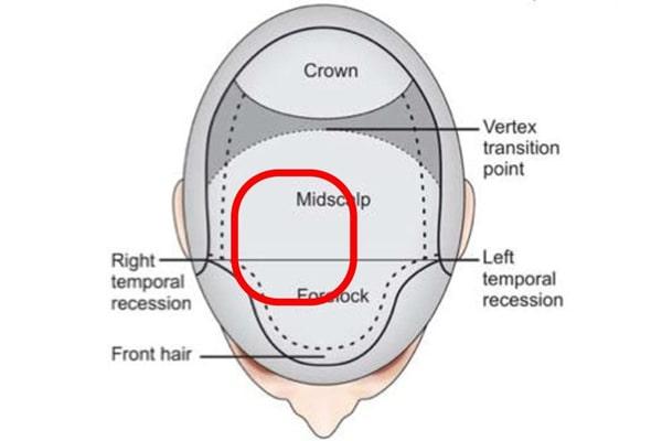 آنچه درباره کاشت مو باید بدانیم