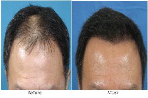 کاشت مو در محل خط رويش موی سر بصورت طبيعی