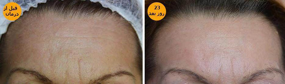 قبل و بعد درمان پوست باتیکسل