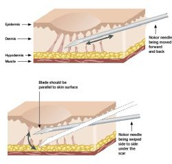 سابسیژن برای درمان اسکار اکنه