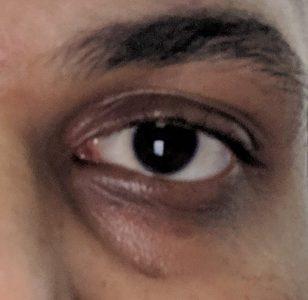 گودی و سیاهی دور چشم